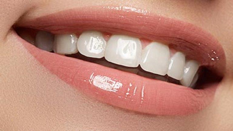 زیبایی دندان با لمینت